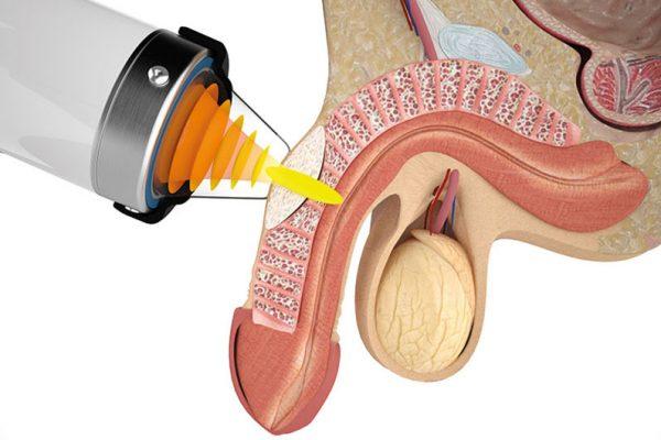 อวัยวะเพศ โค้ง งอ ผิดรูป Peyronie's disease (โรคไพโรนีย์)