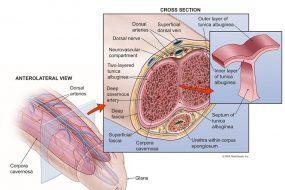 Dorsal Neurotomy