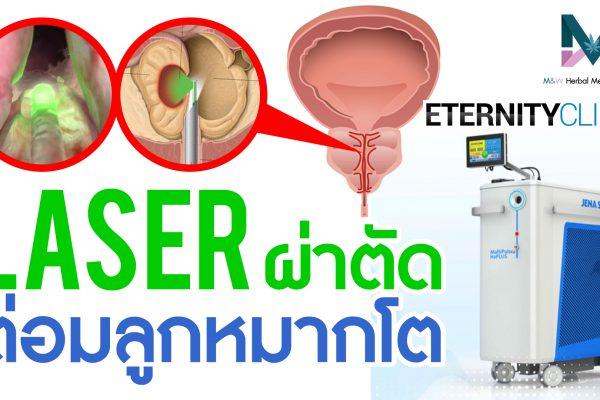 ต่อมลูกหมากโต วิธีการรักษา การผ่าตัดต่อมลูกหมากด้วย Laser
